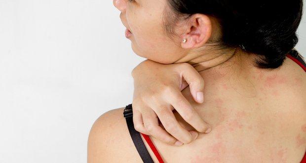pyzircatij-dermatit-1.jpg