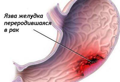 Возникновение рака желудка