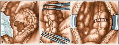 Операция при непроходимости кишечника