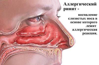 Воспаление при рините
