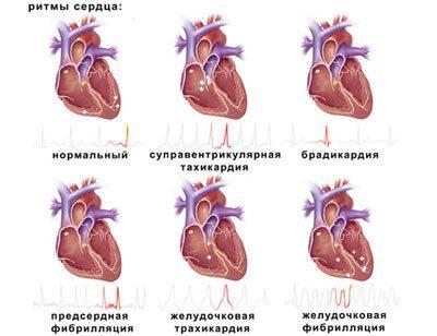 Нарушения в работе сердца