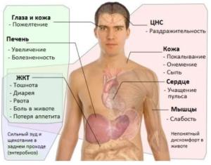 симптомы-4-300x235.png