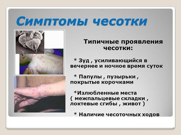 симптомы-чесотки.jpg