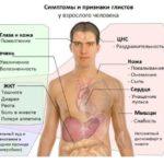 simptomy_i_ptiznaki_glistov_u_vzroslogo-728x627-150x150.jpg