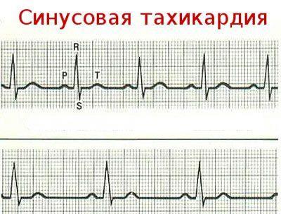 Ритм сердца при тахикардии