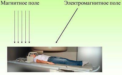 Излучение при мрт