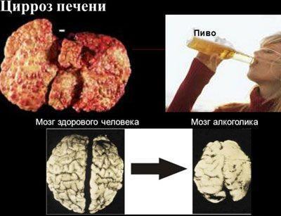 Печень и мозг алкоголика