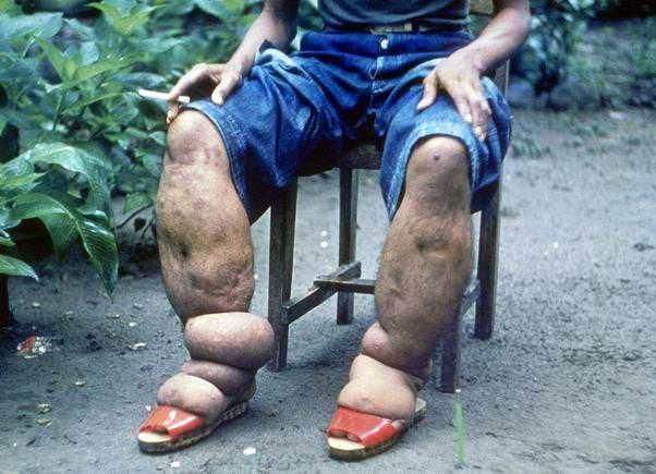 slonovaya-noga.jpg