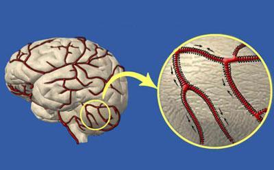 Лекарство для сосудов головного мозга