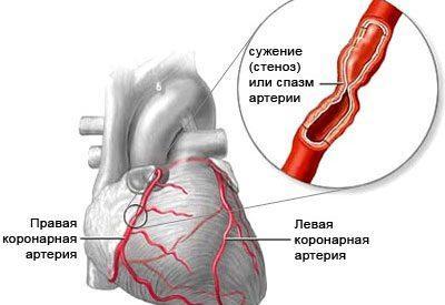 Сердце при стенокардии