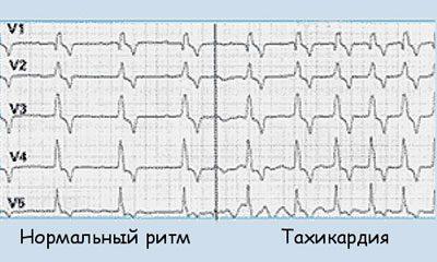 Тахикардия на кардтограмме