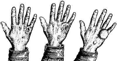 Попадание яда на кожу
