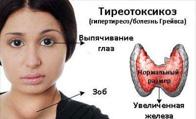 Проявление тиреотоксикоза