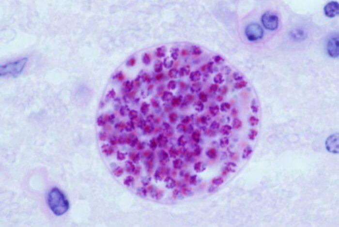 toxoplasma-gondii.jpg