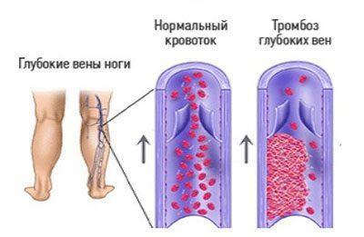 Проявление тромбоза