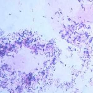 ureaplasma_5-300-1.jpg