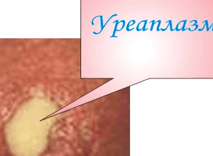 ureaplazmoz-pri-beremennosti-slabye-simptomy_2.png