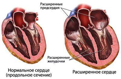 Сердце при кардиомегалии