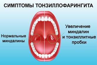 vidy-streptokokkov-v-glotke_4.jpg