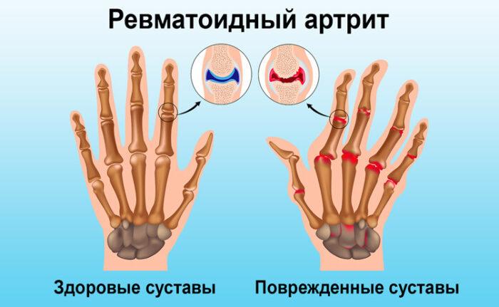 vidy-streptokokkov-v-glotke_8.jpg