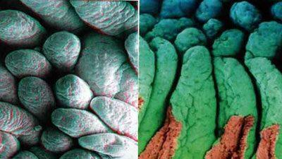 Нормальные и зашлакованные ворсинки кишечника