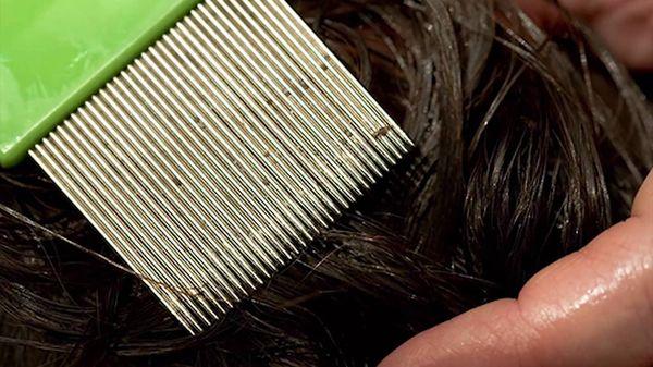 вычесывание-волос.jpg