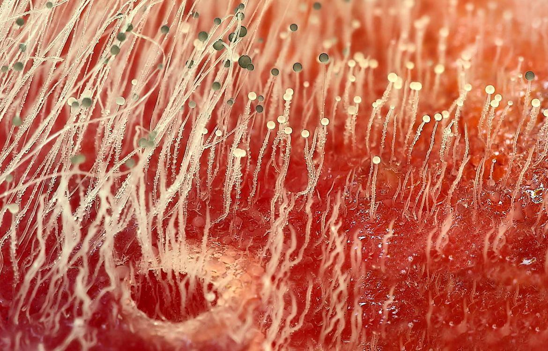 Плесень в организме человека