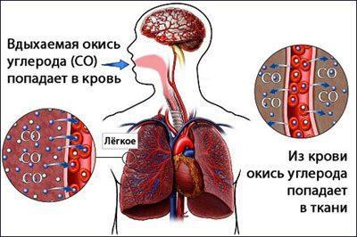 Симптомы отравления угарным газом