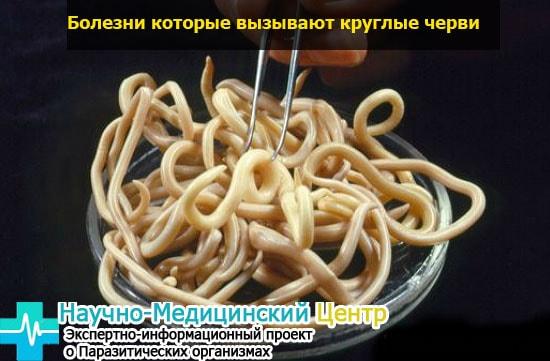 zabolevania_vusvannue_nematodami_gemoparazit_w331-min.jpg