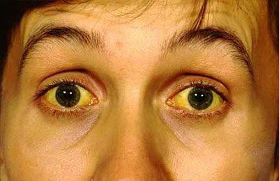 Кожа и глаза при желтухе